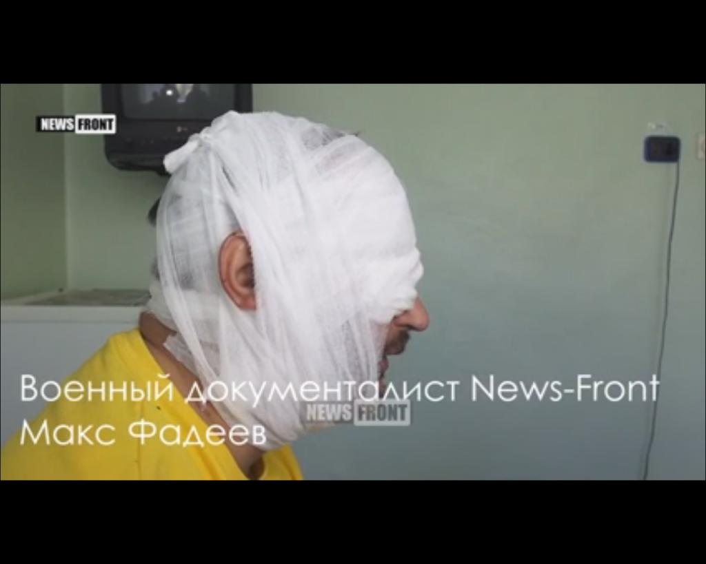 Путин в ярости! Под Донецком ранили его известного пропагандиста (ВИДЕО)