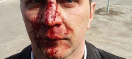 В Киеве был зверски избит врач, который рассказал всю правду о коррупции в медицине