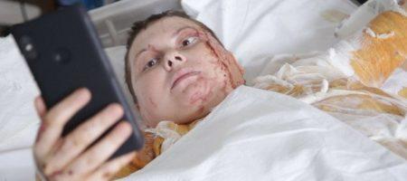 Известная украинская активистка Екатерина Гандзюк умерла