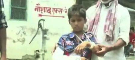 Индийские медики умудрились наложить ребенку гипс не на ту руку