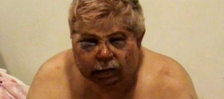 Зверски избивали и душили подушкой: председателя ассоциации фермеров Подольского района пытались убить