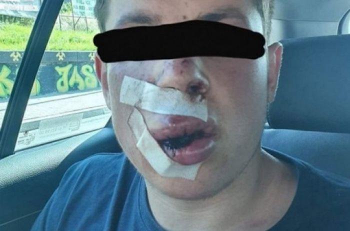В Польше юношу покалечили лишь за то, что он приехал из Украины