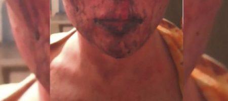 В Житомире спортсмен с группой подростков изнасиловал и избил 19-летнего парня