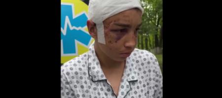 Били пилой и лопатой: 17-летний харьковчанин рассказал о пытках