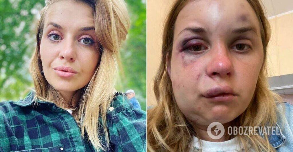 В поезде Мариуполь-Киев избили и пытались изнасиловать женщину (ВИДЕО 18+)